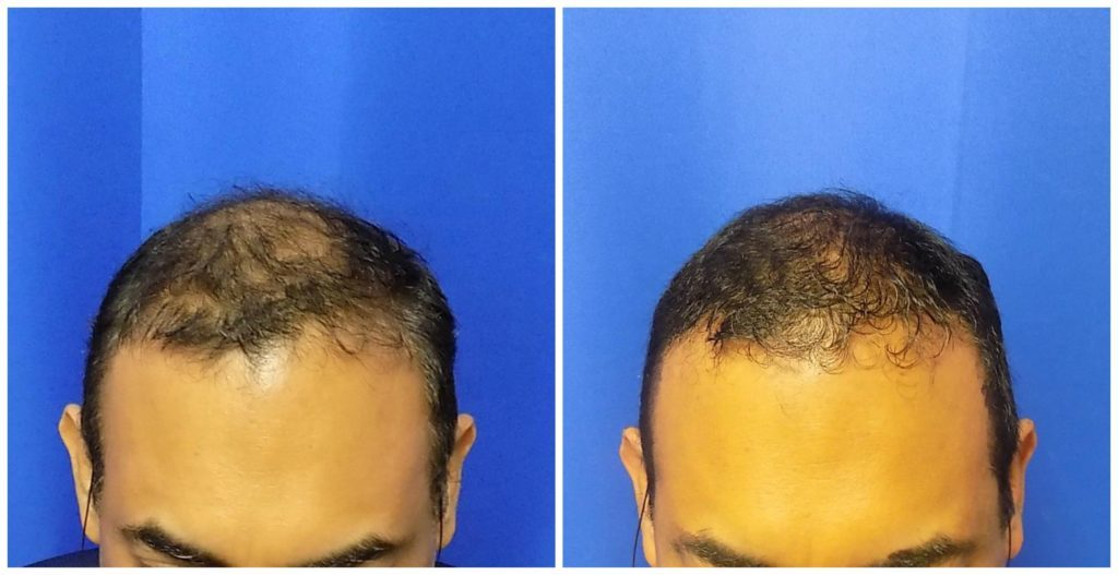 NeoGraft Before & After Patient #224
