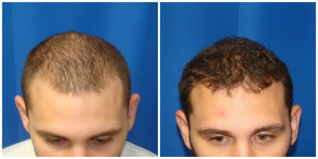 NeoGraft Before & After Patient #187