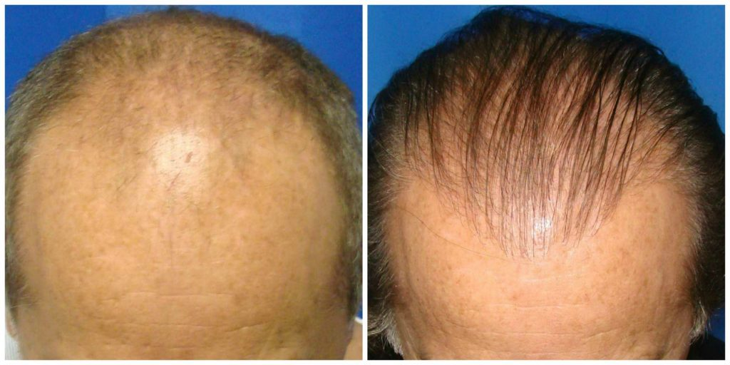 NeoGraft Before & After Patient #204