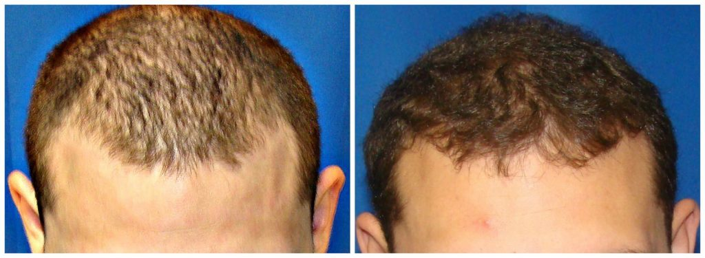 NeoGraft Before & After Patient #210