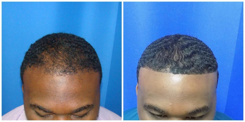 NeoGraft Before & After Patient #206